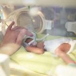 Atemnotsyndrom (IRDS) des Frühgeborenen