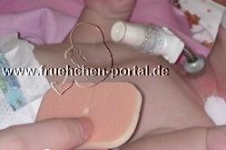 Stomapflege beim frühgeborenen Kind