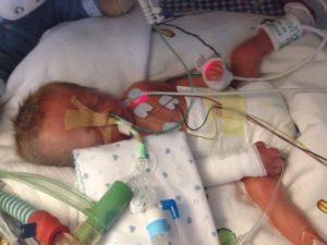 Beatmung eines frühgeborenen Kindes